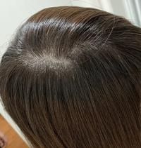 リタッチをして頂いたのですが新たに染めていた根元の色が暗くて色の差が出ているように感じます。(写真だと下半分の髪の根元が若干暗い。 気にし過ぎなのでしょうか?)  お直しをお願いしたところ「明るい毛先...