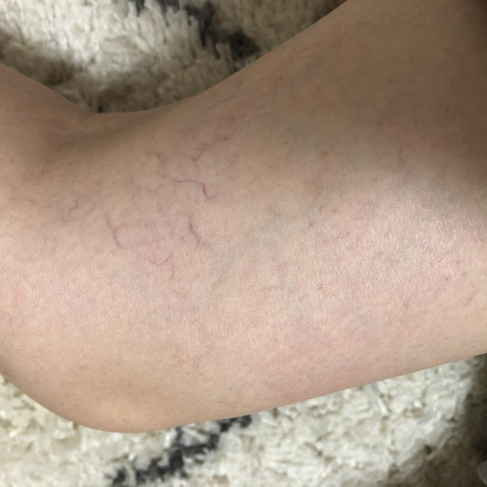 赤い 斑点 かゆい 足