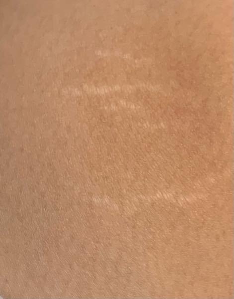 この白い線みたいなやつ何だか分かりますか? 膝と内ももにあります。