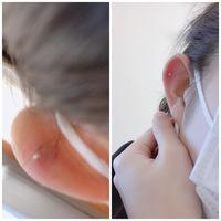 軟骨にピアスを開けたのですが、私はヘリックスのつもりでニードルで開けました。しかし、私の耳の軟骨は巻き(? )が浅く少し内側に開けることしかできませんでした。耳の裏から見ると確かに少し内側です。これだとリングのピアスはつけられないでしょうか? また、これはアウターコンクの位置になりますか?