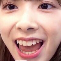 NiziUのミイヒちゃんってそこまで可愛くないと思うんですがどう思いますか?