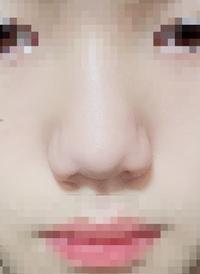 豚鼻 団子鼻  私は顔の中で唯一鼻が大嫌いです。 母はすごく綺麗な鼻をしているのに父の鼻を受け継いでしまって、すごく嫌です。 私の鼻は何鼻ですか? どうすれば少しはましになりますか?