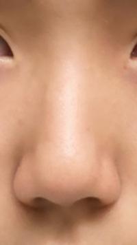 画像のように鼻が大きくて丸いです。 シュッとした小さくてとんがっている鼻になるにはやはり整形しかありませんか? この鼻が原因でモアイと呼ばれいじめられています。 真剣に悩んでいるのでマッサージ法や良い美容整形クリニックなどがあれば教えていただきたいです。お願いします。