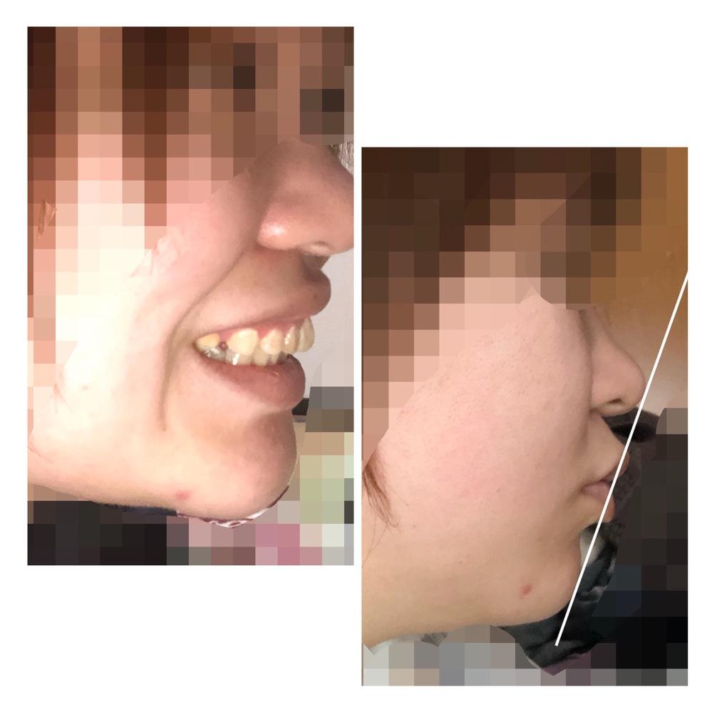 昔から口が出ているのがコンプレックスです。周りからはアヒル口だと言われてきましたが、嫌すぎて整形しようかなとも考えています。 整形について調べていたところ知り合いに歯の矯正をしてみたらと言われました。 確かにかよっている歯科でも何度も顎が外れたりズレたりすると言ったら矯正した方がいいかもと言われました。 矯正の方が手術より怖くないし、知り合いもたくさんしているしいいと思っています。 口ゴボ...