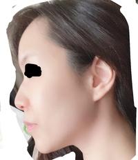 26女、横顔です。 顔のデカさ、口ゴボ感、額など、とにかく顔でか&のぺーっと面長がすごーくコンプレックスです。 自分的には、額とこめかみの脂肪注入、鼻尖形成、歯列矯正、人中短縮は絶対必要かなと思ってます。 ただ頬骨もエラもアゴも全て骨格レベルから大きいため、骨切りなどもいづれしようかなと本気で考えています。。。セットバックは適応でしょうか?歯並びが悪いため歯列矯正で歯並びを良くす...
