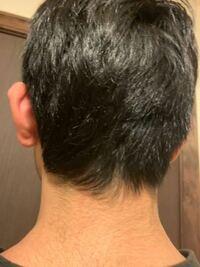 こうゆう襟足って刈り上げたほうがいいですか?上の毛を伸ばして被せたほうがいいのでしょうか?