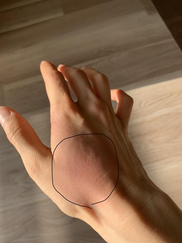 親指の付け根辺りの手の甲が腫れています。 2日前から腫れ、痛みだし、ハサミを使ったりすると痛みがありました。 ロキソニンの湿布を貼ったら翌日痛みがましになったのですが、赤くなったままです。 (写...