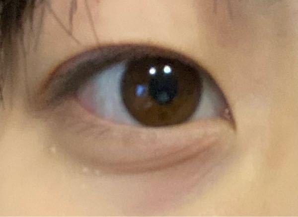 目の下にこのようなシワがあります。どうしたら治せるんでしょうか。高校1年生です、クマもひどいです