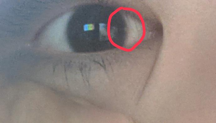 この白い粒見たいなのってなんですか? 視界に影響は無く、目にゴミが入ってる訳でも無いです。 昨日このことに気が付きました。