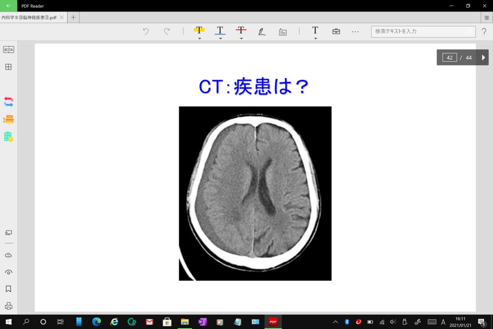 至急お願いします。 このCT画像は何になりますか。 左のところが黒く、くの字の形になってます。 教えてくれないでしょうか。 よろしくお願いします。