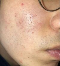 画像注意 25歳男です。顔の肌の毛穴について悩んでいて、本当に辛いです。 皮膚科に通ってはいますが、いつまでも綺麗なお肌になりません。  毛穴を目立たなくしたいです。 拡大すると見える小さな毛等も無くしたい 。 小鼻から出てるのは毛でしょうか... 頬の赤みもずっとなくなりません。  状態として、 1.恐らく乾燥→オイリー肌? (爪があたると爪がテカテカになります。) 部屋の加湿はちゃんとし...