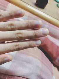 (画像あり) 爪にマニキュア(トップコート)を塗り爪噛み癖を治しているのですが、爪への負担は大きいでしょうか? 1ヶ月程続けており、爪は伸びています。 今後はハイポニキウムを伸ばしたしていきたいのです...