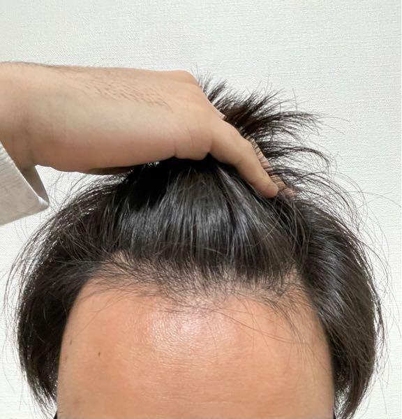 これって禿げてますよね? 大学生なのですがおすすめの育毛剤や病院教えてもらえませんか、、