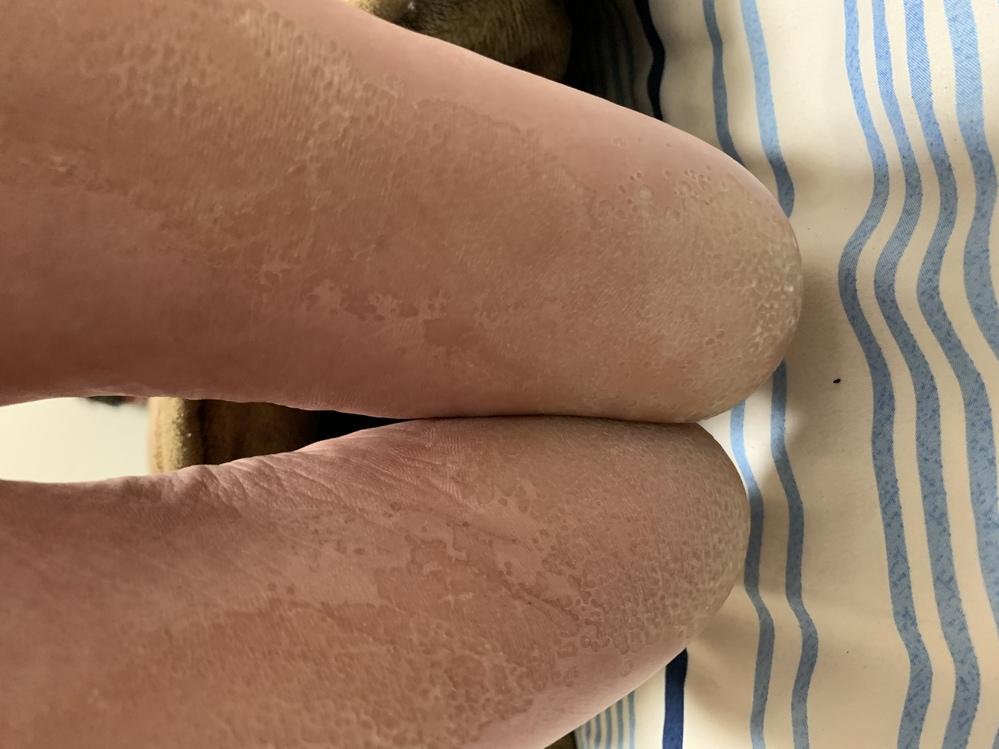 これは水虫なのでしょうか。 痛くも痒くもありませんが、とんでもなく臭いです。また、この状態は皮膚科に行った方が良いのでしょうか。