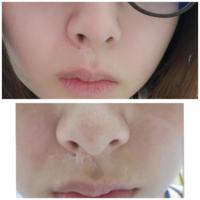 鼻下の傷跡、すっぴんだと目立ちますか?? 化粧するとほぼ目立ちません。  15年前の交通事故の傷跡です。形成外科で傷跡修正を受けました。しかし、これ以上の改善は望めません。 傷の損傷が深いためレーザー治...