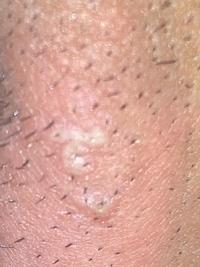 痛い 陰部 と しこり 押す 男性性器の異常 家庭の医学 時事メディカル 時事通信の医療ニュースサイト