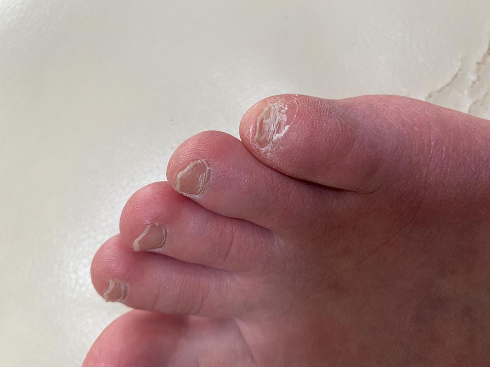 閲覧注意 お見苦しい写真失礼します 高校三年生女子です 足の爪にずっと悩んでいます どうしたら良いのか教えていただけるとありがたいです。