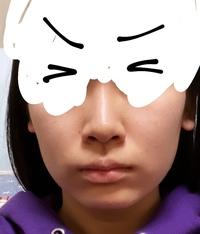 この鼻がコンプレックスです。 これはニンニク鼻でしょうか?