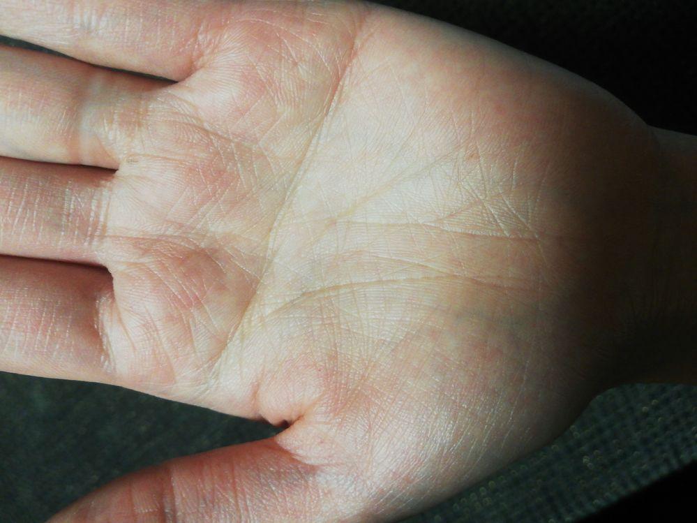 わたしは全体的に手相が薄い気がします。 両手ともますかけ線があります。 ますかけ線だけ網状になっています。 他は生命線と真ん中の縦線だけあって あとは薄いです。 生命線の途中に線が入ってるのが 気になります。 手相に詳しいかた、全体的に手相が 薄いのは悪いことなんでしょうか?