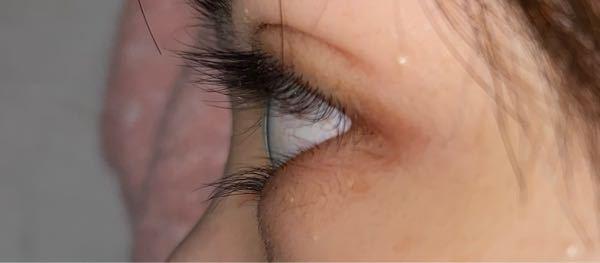 これは奥目ですか? 出目と奥目の見分け方が分かりません。 私の目は奥目ですか?