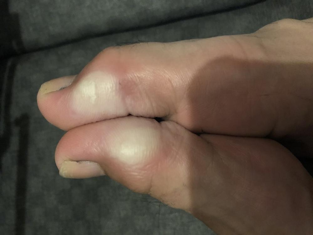 これは水虫ですか?痛みなどないのですが、今日靴下を脱いだら白くなっていました