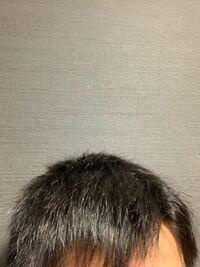 髪の毛をサラサラにしたいのですが縮毛矯正とストレートパーマどちらをした方が良いでしょうか?今の髪質は下の写真です。
