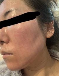 画像あり。フラクショナルレーザーeco2後顔がシマシマに赤くなりました。  昨日の夕方にカウンセリングを受け、全顔で施術を受けてきました。 麻酔クリームのおかげで痛みも少なく、術後に多少ひりつき感もありましたが、特記することもなく無事終わりました。  24時間は水を含めた洗顔禁止、ワセリン以外での保湿禁止なので、顔にはまだワセリン以外を使っていません。  術後から特にネットの画像...