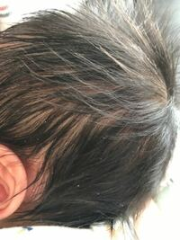 新生児の赤ちゃんの頭に粉のようなものがたくさんついてるんですが、フケでしょうか?