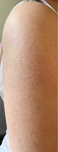 高校生です。 昔から二の腕にぶつぶつがあります。 ニキビではありません。 これは何ですか? 同じような経験ある方いたら何か教えてください。