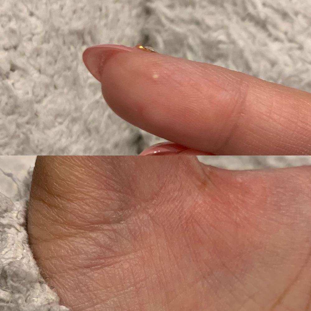 てのひらに出来る出来物について質問です。 てのひらにはまに固い出来物が出来ていたのですが(昔はいじっていたら取れて、取れたところに穴が空いたりしてました)近ごろ、右手中指の先にあったホクロのよう...