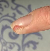 猫のひっかかれて化膿  2週間ほど前に飼い猫がじゃれて小指をひっかかれました。 よくある事なので適当に消毒してカットバンを貼っていたのですが良くならないので病院に行き(この時1週間経過)膿を出し、抗生物質の点滴、破傷風のワクチンをしてもらい自宅では抗生物質の飲み薬と塗り薬を塗っていても一向に良くなりません。 色々調べると肉芽腫なるものを知りそれではないかと思っています。 ゲンタシン軟...