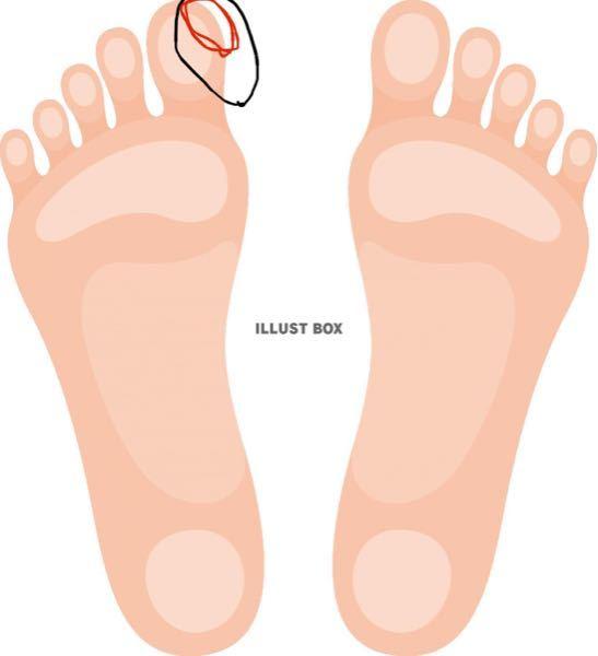 ここ数ヶ月足の親指の角質が固くなり、乾燥してるガサガサします。 右足の親指だけです。 親指の横で特に酷いのは赤丸で囲ってる親指の側面より少し上指先に近いところです。 気になって爪切りなどで切って...