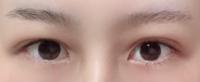 まぶたの埋没をして1ヶ月と3日が経ったのですが、現時点で左右差が気になっています。 自然の範囲内で差が出るということは了承済みですが、画像で見て左側の瞼だけがまつ毛の生え際まで下がってきている状態です。 自分としては大きな差なのですがこれは施術した病院に相談したら何か対処してもらえる状態でしょうか?