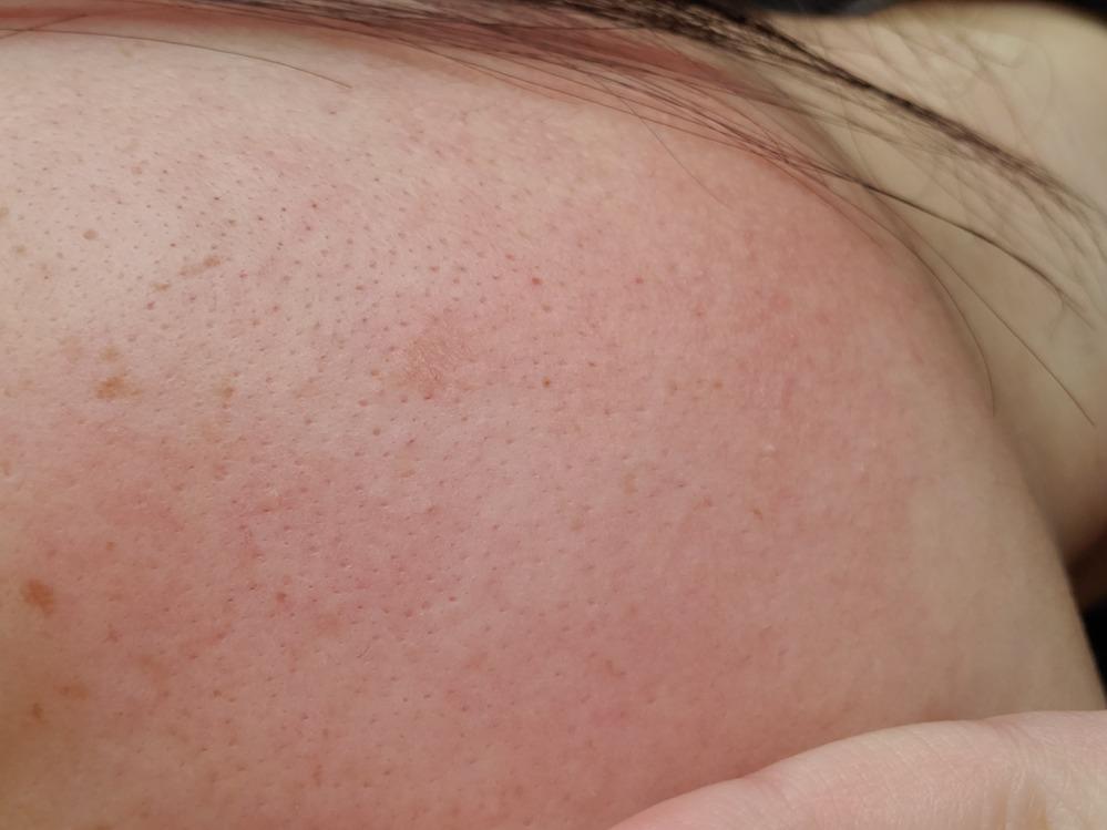 閲覧注意です このような肌はどのように直せばいいんでしょう しみなのか毛穴なのかもわかりません。