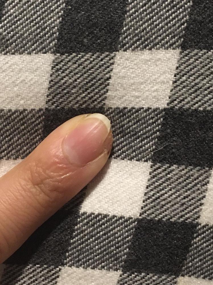 先日包丁で指と爪を切り、もう傷も治り痛くもないのですが、割れていた爪が外れてしまいました。新しくまた爪伸びてきますか? ちゃんと綺麗な形に戻ってくれますか? わかりずらいですが写真も添付しておき...