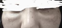 ジュピター厶ボリューマー、グロースファクターを受けました 2週間後東京○央美容外科の○都院にて 目の下のたるみ、クマを改善する為に脱脂を されてからに目の下のクマが改善されずに 酷くなり再診察を受けたのですが… 担当の先生は(ヒアルロン酸が足りないだけた)と別の種類のヒアルロン酸を 目の下に注入されました その後頬の上が不自然に膨らみ 弁護士紛争センターに解決を求めましたが 相手の先生は顧問...