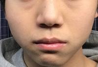 鼻の膨らみの高さが左右非対称で頬あたりも非対称になってます。どーやったら治りますか また、整体院とかに行ったら治りますか? どなたか教えてください!!!