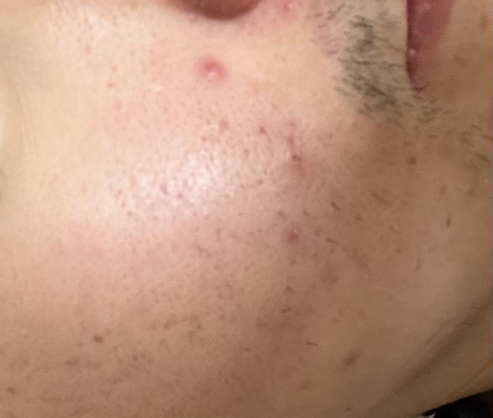 皮膚科に行ったらこのニキビ治りますか?