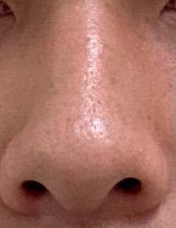 何鼻ですか?