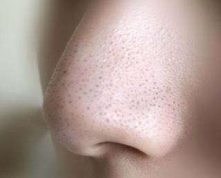 鼻の黒ずみ、いちご鼻はやはり完全には消えないのでしょうか… ※実際の鼻の黒ずみ添付してます。 有名なBioreの洗顔エステでパックしたらその時は綺麗になるのですが空気に触れて酸化したらやっぱり...