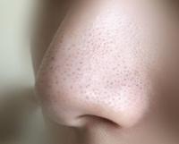 鼻の黒ずみ、いちご鼻はやはり完全には消えないのでしょうか…  ※実際の鼻の黒ずみ添付してます。 有名なBioreの洗顔エステでパックしたらその時は綺麗になるのですが空気に触れて酸化したらやっぱりすぐ元通りの...