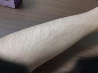 この腕毛は濃いですか