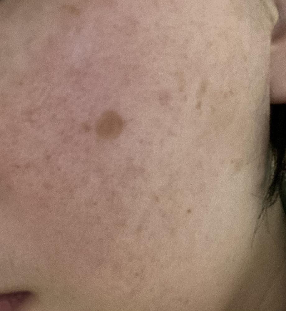 頬の直径6mmの茶色いシミ(画像)を取るのにお勧めな方法を教えて下さい。 10年程前に凍傷を負った部分らへんですが数年前から徐々に大きく濃くなってきています。 凍傷より前にシミの相談を皮膚科でし...