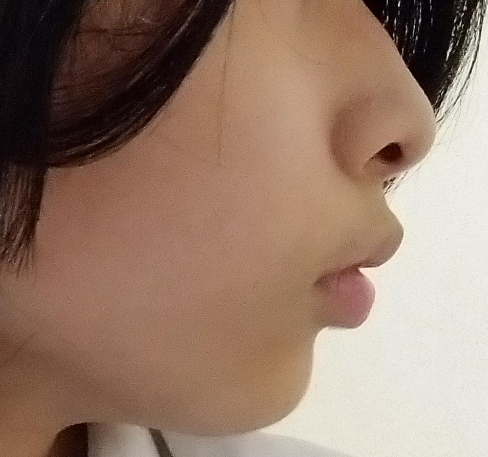 これは口ゴボでしょうか? また、改善法なども出来ればお願いします。