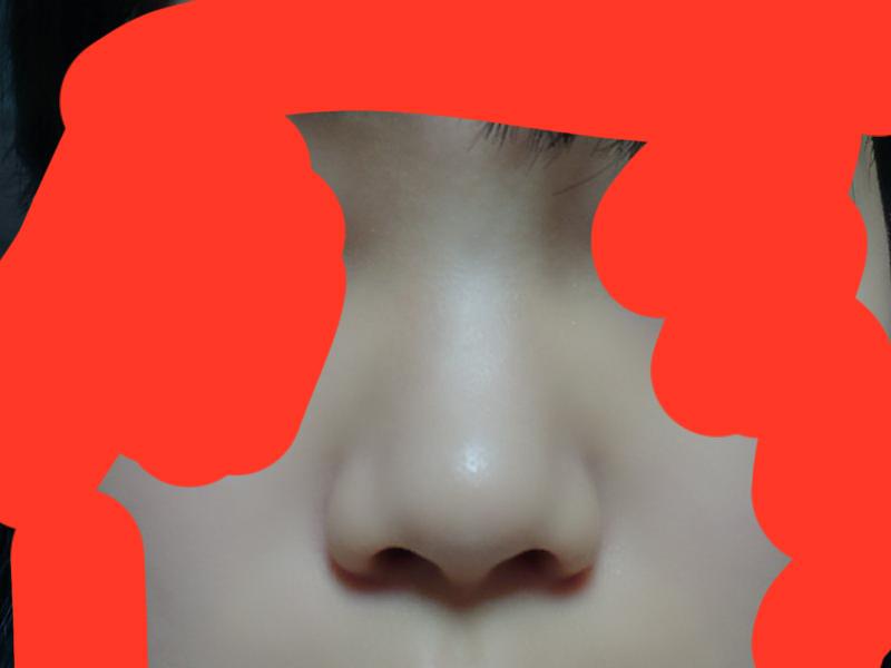 鼻の写真失礼します。 この鼻は団子鼻ですか?ニンニク鼻ですか?