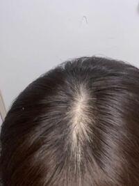髪の毛のつむじが薄いことに悩んでます。 何かいい方法や体験して治ったorマシになった人いたら教えてください。