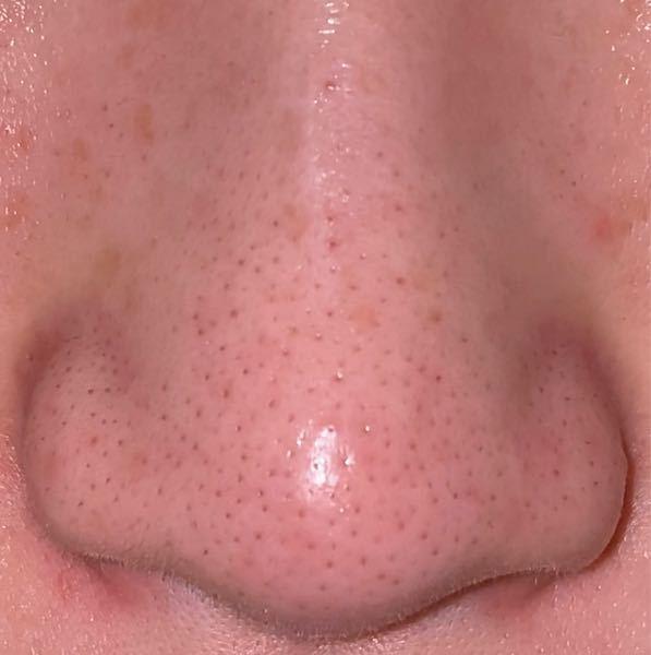 いちご鼻を改善したいです。 汚い画像失礼致します。21歳女です。 鼻だけテカリやすく、その他は乾燥しやすい、混合肌です。毛穴の黒ずみが目立つのも鼻だけです。 LUSHのパワーマスクを毎日使用しています。週2.3回といわれてるのは分かっていますが、使わないと黒ずみが目立つので鼻だけに毎日使っています( ; ; ) 時間がある時は、ホホバオイルを使ってマッサージなどもしていますが、効果を得られているのかはわかりません。 上記二つ以外に鼻のためのスキンケアは行っていません。デパコス、ドラコス、プチプラ、なんでも構いません。皆様の知恵をお貸しください、、