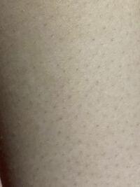 家庭用脱毛器使ってるんですが、医療脱毛とは違って少し時間がかかるのは承知ですが、既に毛が生えるのが遅くなったりと効果が出てるのは分かるのですが、剃って皮膚に埋まったりしてる毛とか埋まったのが少し膨...