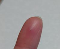 腫れ た とげ 刺さっ が とげがとれずしこりのようになりました