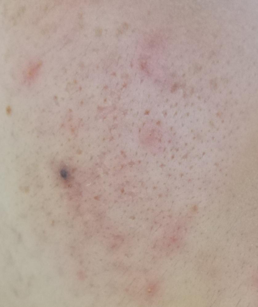 肌がとても汚いです。 17歳女子です。 中3頃からニキビができ始め、今は昔ほどではないけどほとんど常にニキビがある状態で、ニキビ跡が酷いです。 また、頬の毛穴の汚れ?開き?が気になります。 あと、写真にある通り今黒いニキビ跡???みたいなのがあります。たぶんここにニキビがあったと思います。 これはなんですか?どうやったら治りますか? この肌の状態を改善するにはどうしたらいいでしょうか。 教...